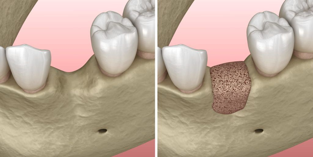before and after bone graft for dental implants