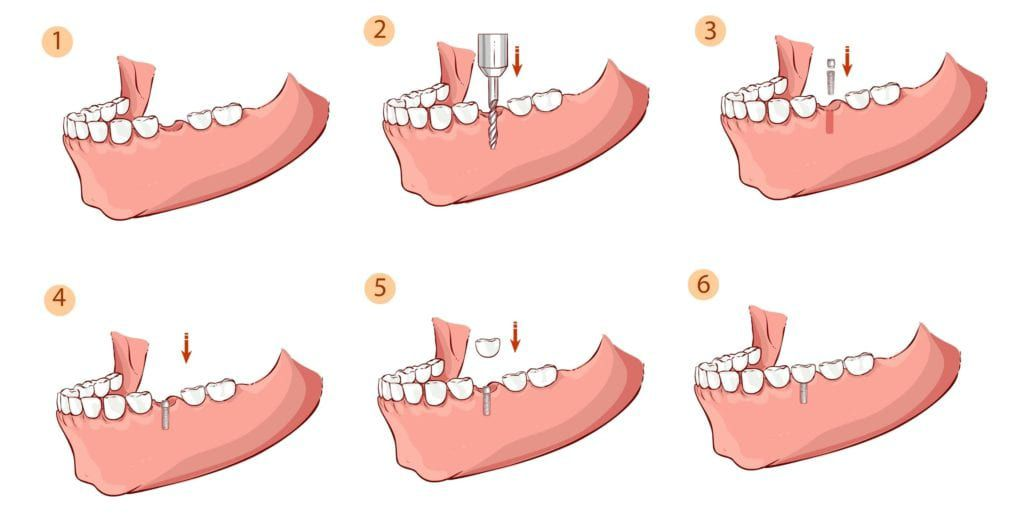 Dental implant placement procedure steps