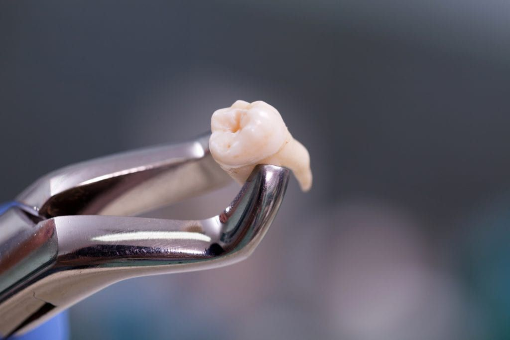 tooth in forceps