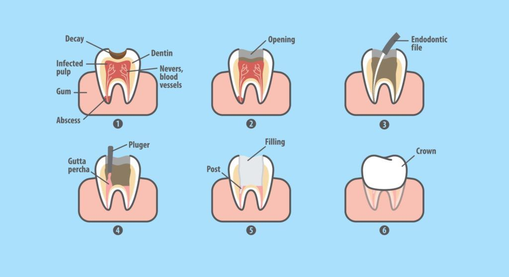 steps of a root canal