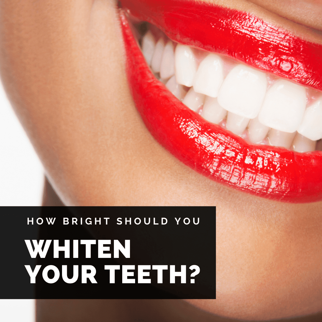 How Bright Should You Whiten Your Teeth? - Glow Dental