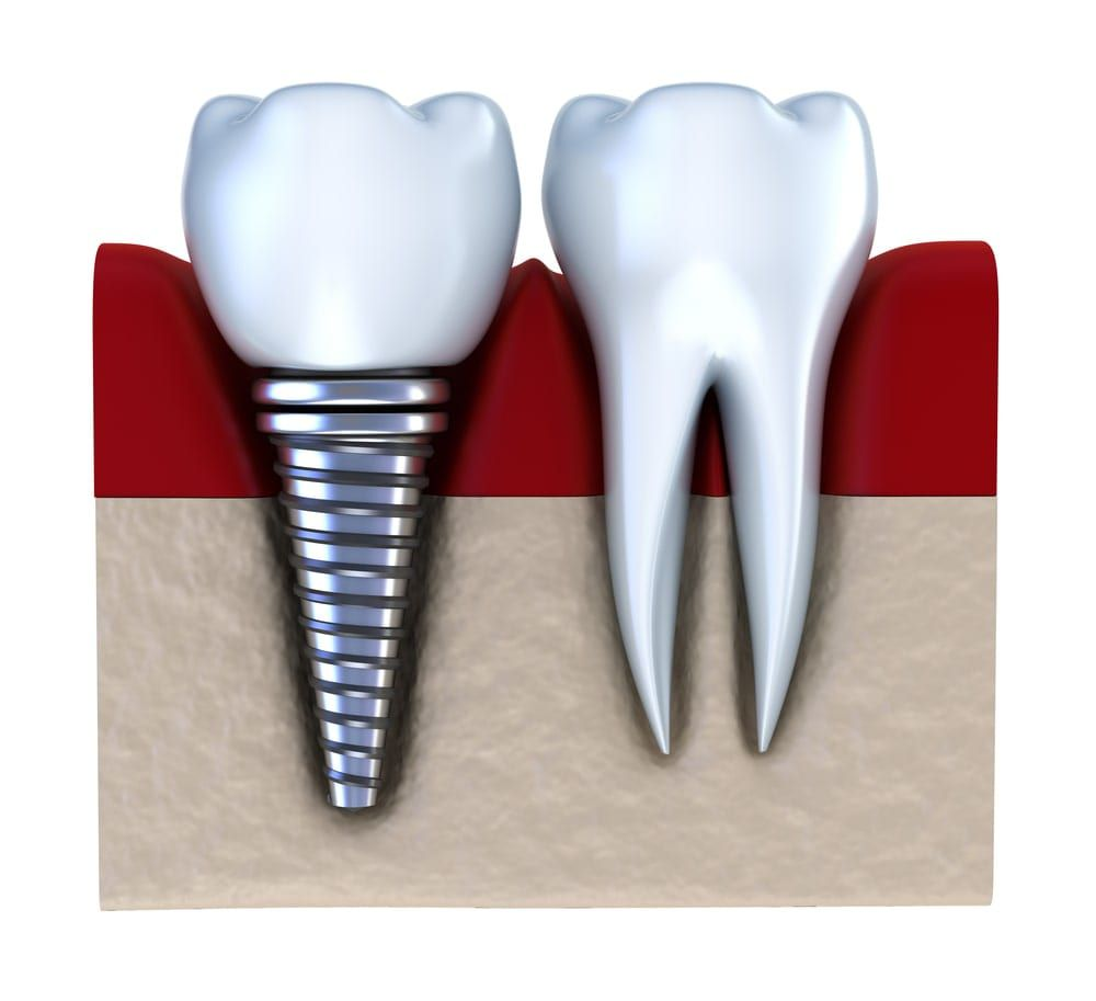 dental implant shown next to natural tooth