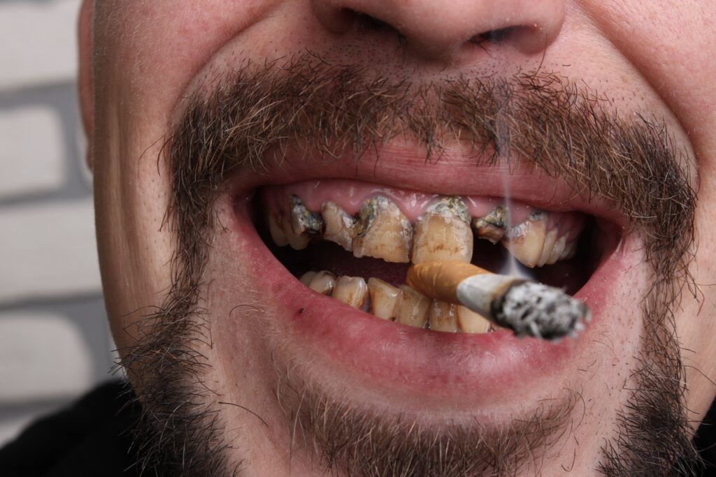 close up of man's stained teeth with a cigarette